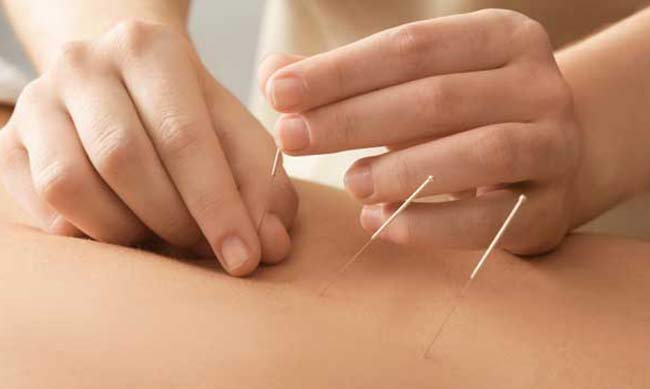 Trigger Point Dry needling Patient